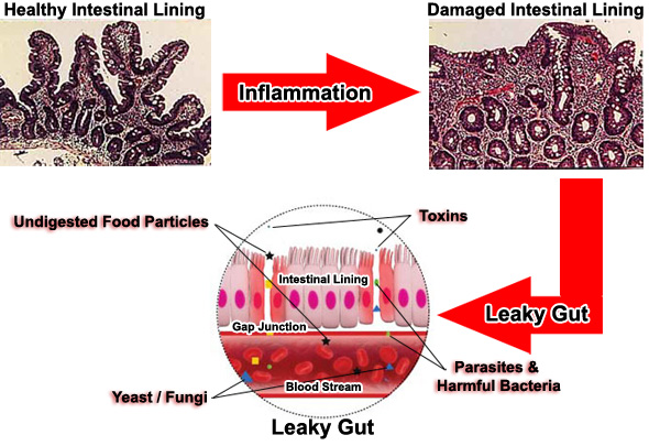 Leaky Gut Syndrome Developmental Process