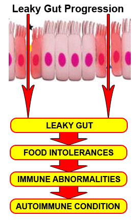 Leaky Gut Cure - Fastest Way to Cure Leaky Gut Syndrome